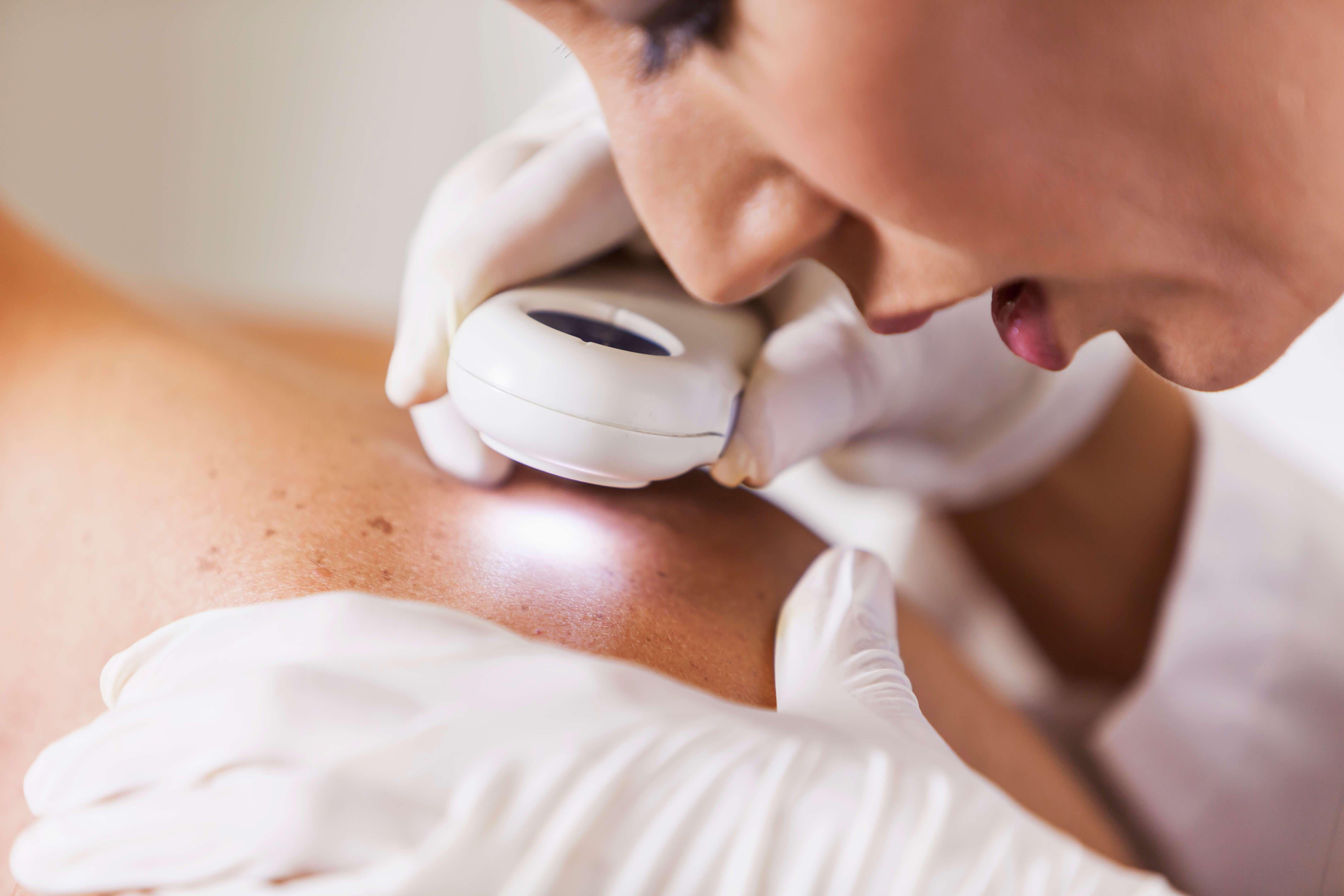 Up close skin checkup